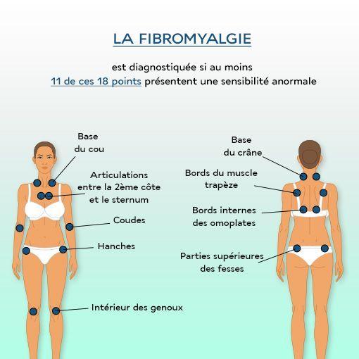 fibromyalgie, points sensibles
